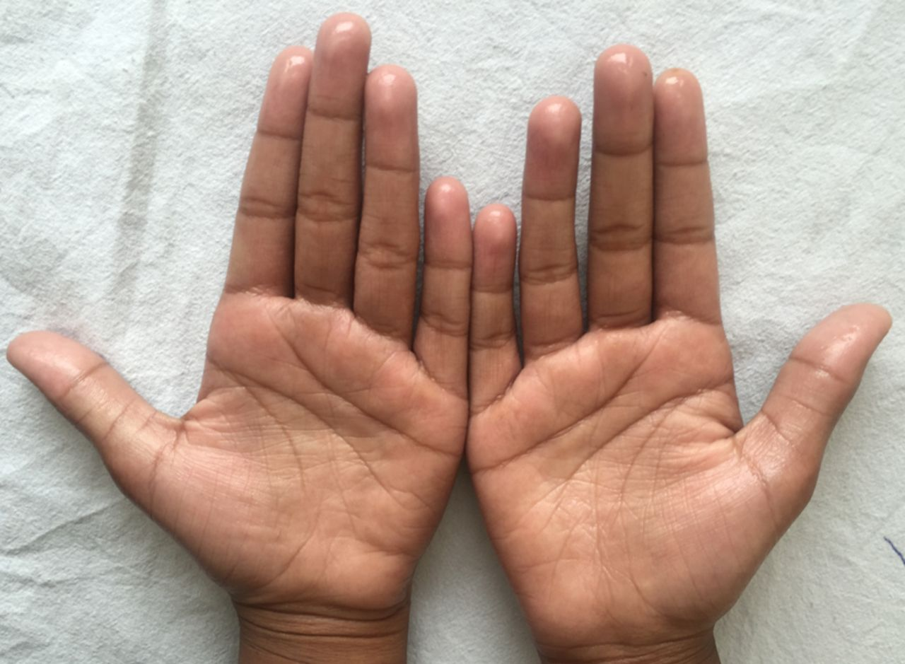 Sweaty Palms and Hands Causes, Cures, Surgery, Remedies